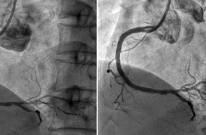 invasive coronary angiography